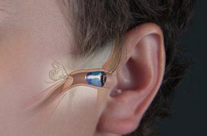 L'appareil auditif intra auriculaire : le choix préféré des utilisateurs