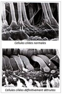 la destruction des cellules ciliéesdans le trouble auditif presbyacousique